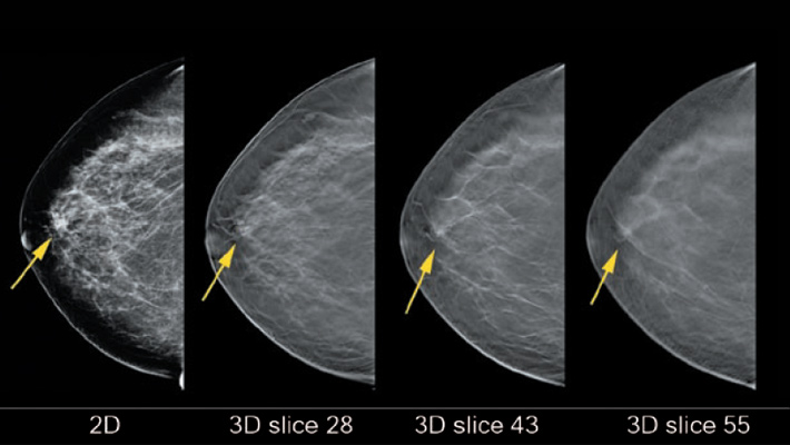 digital breast tomosynthesis cpt